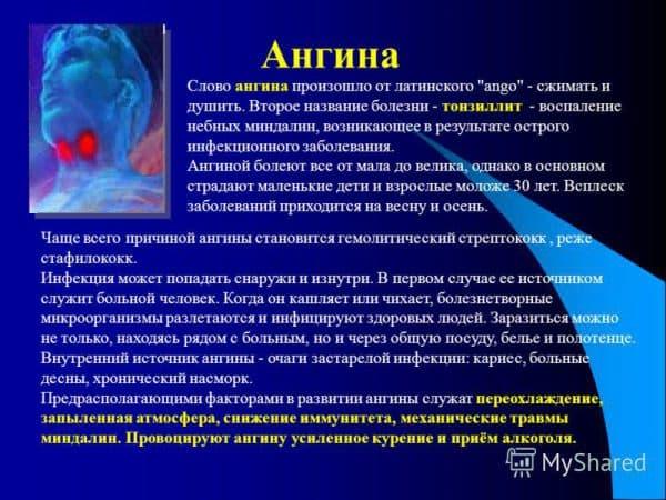 prichiny-vozniknoveniya-anginy