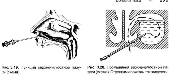 Пункция верхнечелюстной пазухи