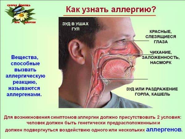 simptomy-allergii