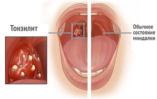 simptomy-xronicheskogo-tonzillita