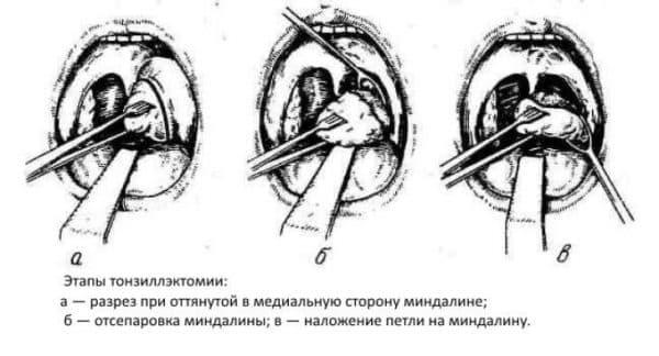tonzilektomiya