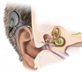 ustanovka-implanta-pri-tugouxosti