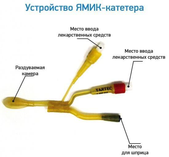 ЯМИК-процедура, как альтернатива пункции верхнечелюстных пазух