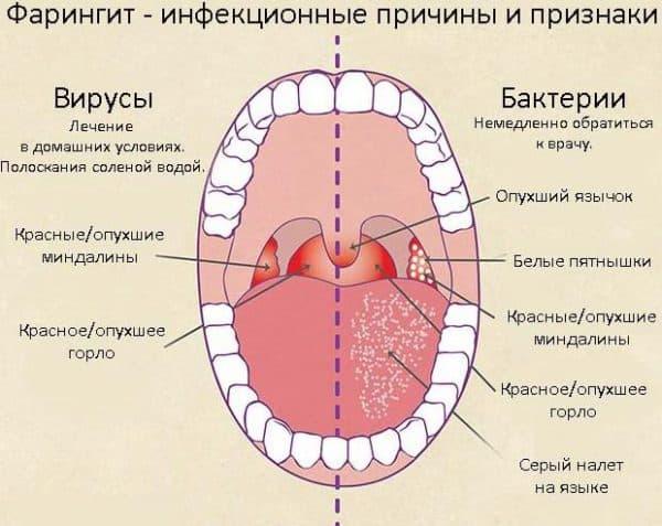 фарингит как причина возникновения тонзиллита при беременности