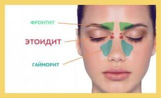 фронтит симптомы лечение