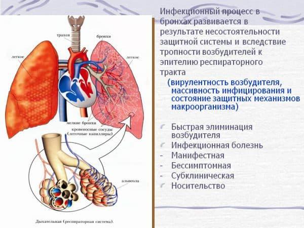 Инфекционных заболеваниях бронхов