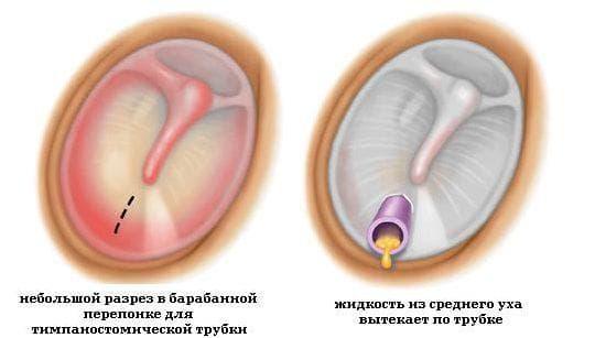 Парацентез уха