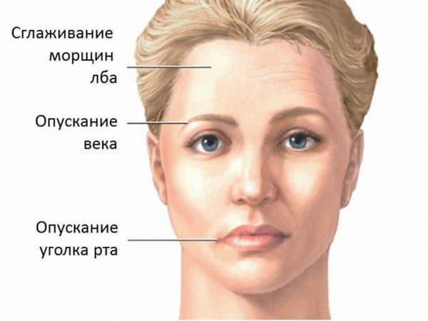 Признаки воспаления лицевого нерва