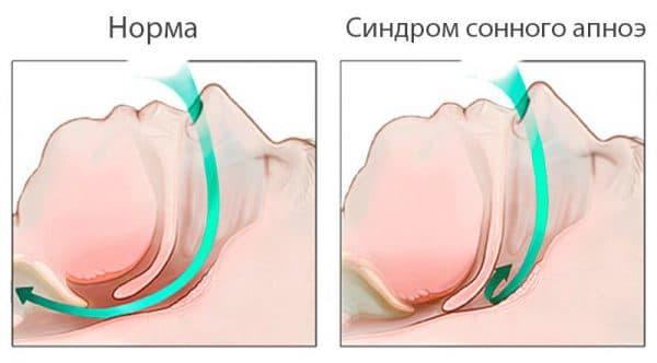 sindrom-apnoe