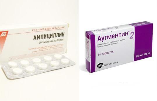 Чем лечить гайморит у взрослых антибиотиками