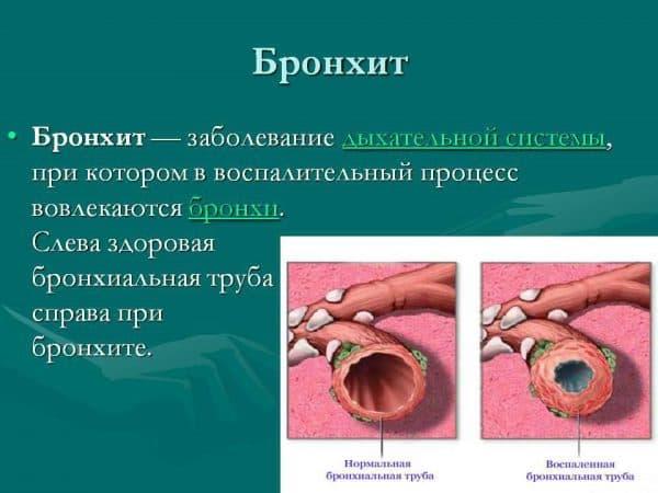 bronxit