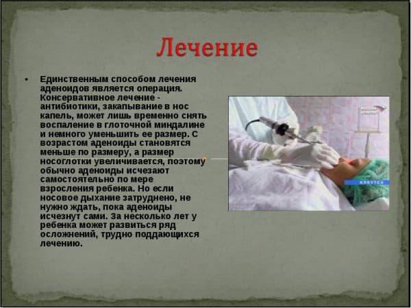 lechenie-adenoidov