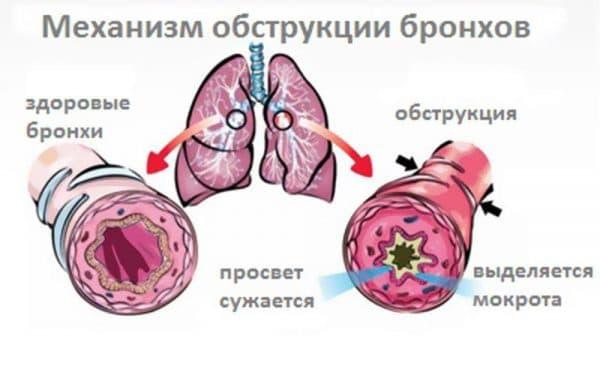 mexanizm-obstrukcii-bronxov