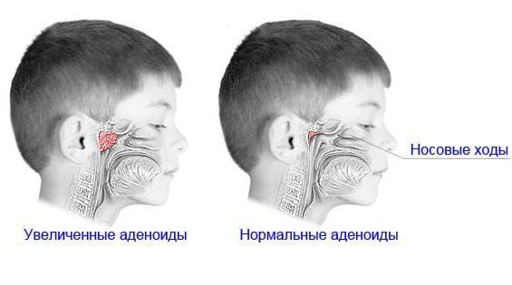 priznaki-adenoidov-u-detej