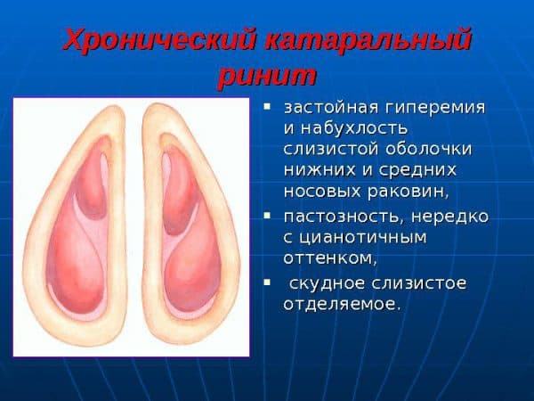 simptomy-xronicheskogo-rinita