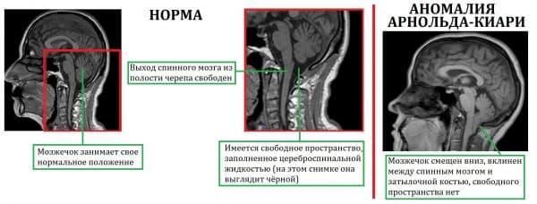 sindrome-arnolda-kiari