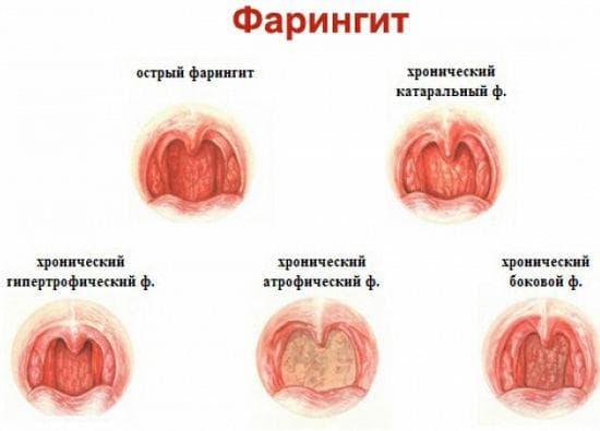 formy-faringita