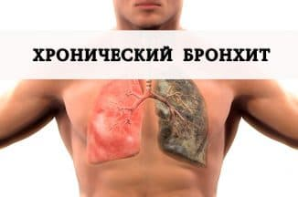 хронический бронхит симптомы и лечение у взрослых