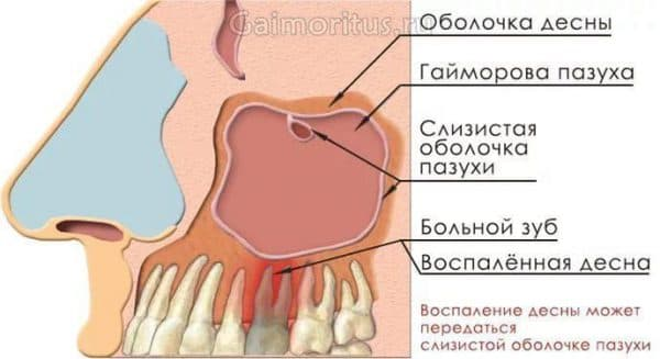 Одонтогенный синусит