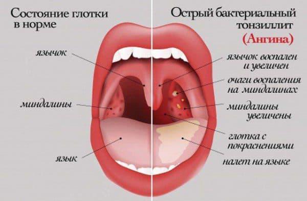 ostryj-bakterialnyj-tonzillit