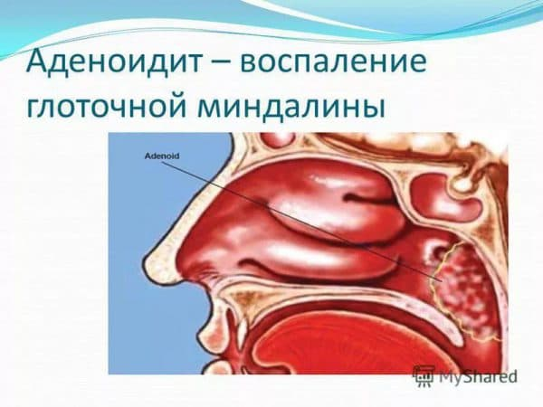 adenoidit