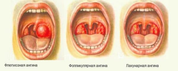 Инкубационный период ангины у детей
