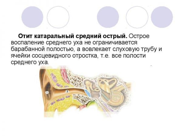 kataralnyj-srednij-ostryj-otit