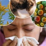 Как лечить аллергический кашель у детей
