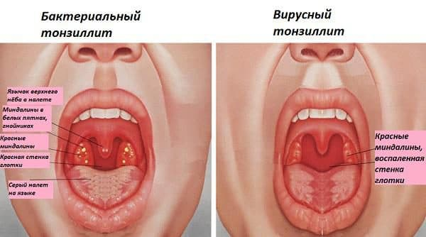 Отличия бактериального тонзиллита от вирусного