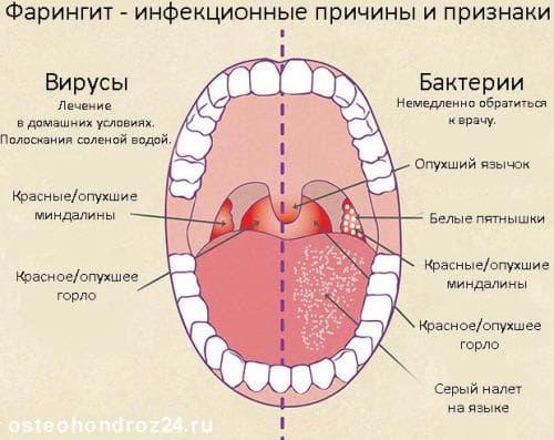 priznaki-faringita