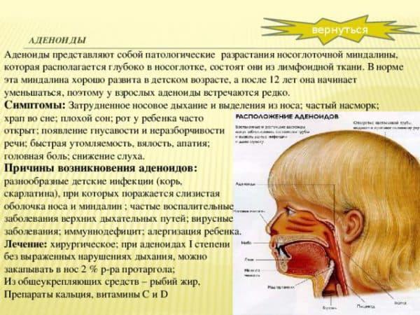 prichiny-vozniknoveniya-adenoidov-u-detej