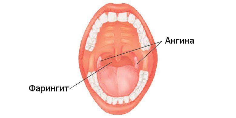 Хронический атрофический фарингит лечение