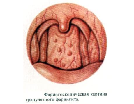 faringoskopicheskaya-kartina-granuleznogo-faringita