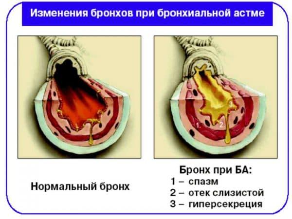 astmaticheskij-sindrom