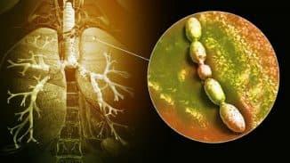 bakterialnaya-pnevmoniya