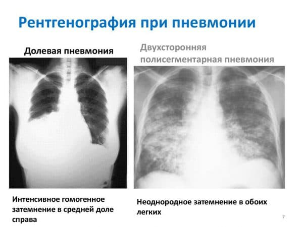 Двусторонняя полисегментарная пневмония