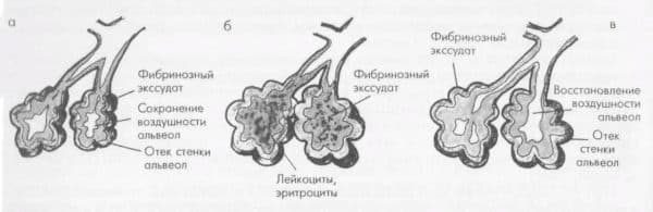 stadii-pnevmonii