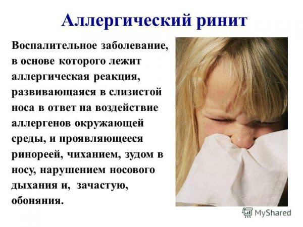 allergicheskij-vazomotornyj-rinit
