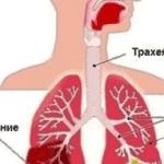 воспаление легких симптомы у взрослых без температуры