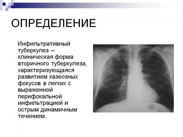 vtorichnyj-tuberkulez