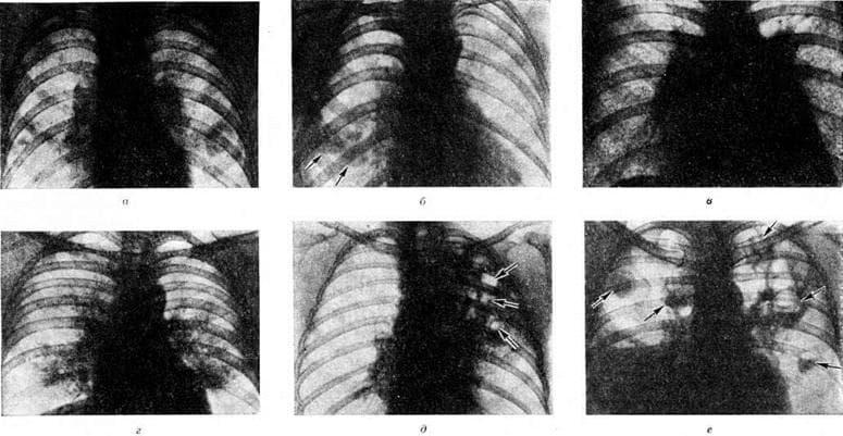 Двусторонняя полисегментарная пневмония у взрослых – причины внебольничной