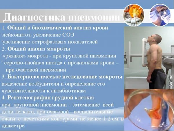Диагностика пневмонии в больнице