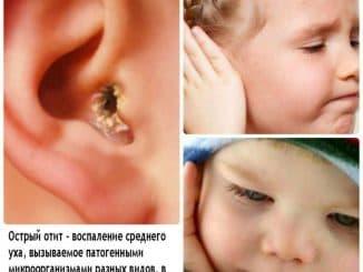 как лечить отит уха