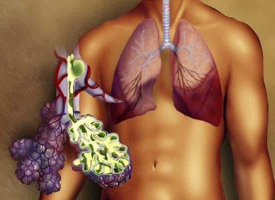 Как понять, что у тебя пневмония – как узнать воспаление легких