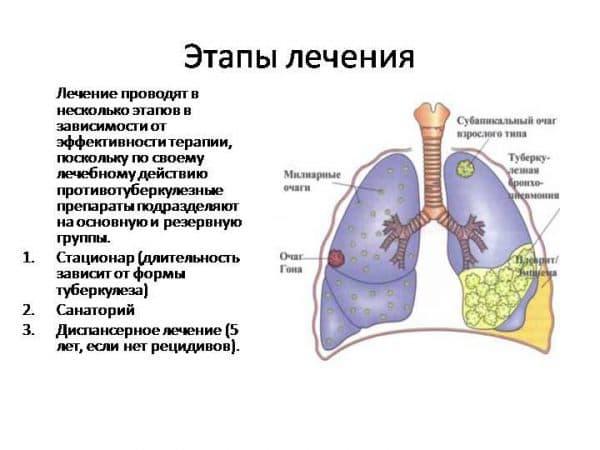 lechenie-infiltrativnogo-tuberkulyoza-lyogkix