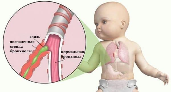 obstruktivnyj-bronxit-u-detej