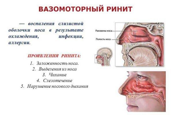 opredelenie-vazomotornogo-rinita