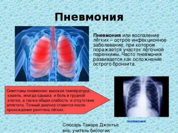 opredelenie-pnevmonii-i-samye-rasprostranennye-simptomy