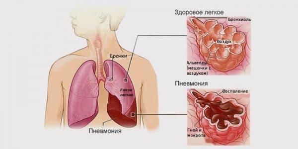 opredelenie-pnevponii-ili-vospaleniya-legkix