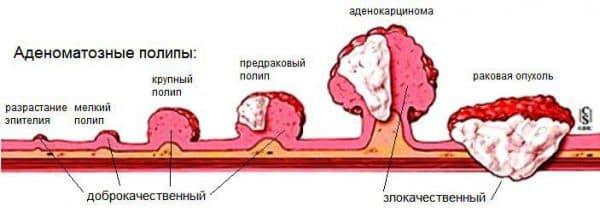 opredelenie-polipov